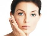Các cách trị nám da mặt hiệu quả tại nhà