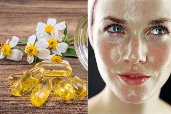 3 cách làm mặt nạ vitamin E cho da nhờn siêu đơn giản