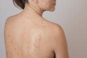 Nóng gan nổi mụn ở lưng và cách trị mụn lưng bằng muối
